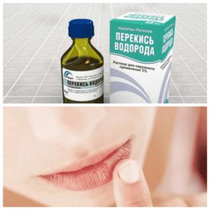 perekis-альфа-herpesa