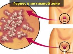 Герпес в интимной зоне у женщин и мужчин: какие симптомы и пути передачи, чем лечить вирус