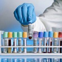 Анализ крови на герпес: как сдавать и что показывают положительные и отрицательные результаты
