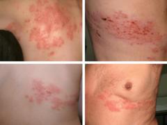 Поясничный герпес: причины появления, как и чем проводить лечение вируса