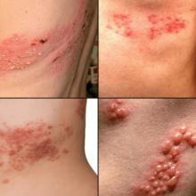 Опоясывающий лишай: симптомы у взрослых, причины, лечение и профилактика