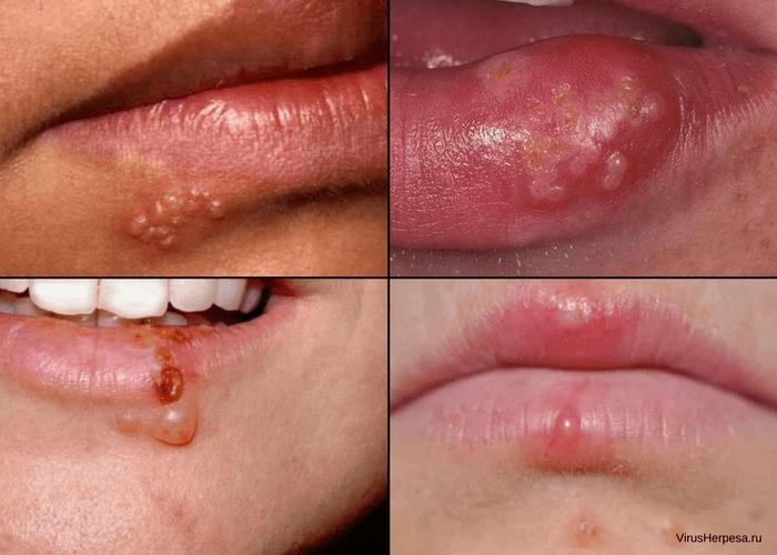 Как лечить герпес на губах в домашних у словиях