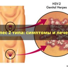 Вирус герпеса 2 типа: какие пути передачи, симптомы и лечение вируса, фото