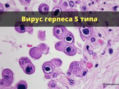 Герпес 5-го типа: причины заболевания, основные симптомы, лечение и профилактика