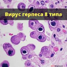 Вирус герпеса 8 типа: что это за вирус, симптомы и лечение