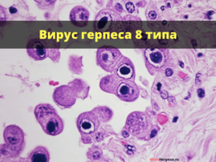 Герпеса 8 типа: что это за вирус, симптомы и лечение