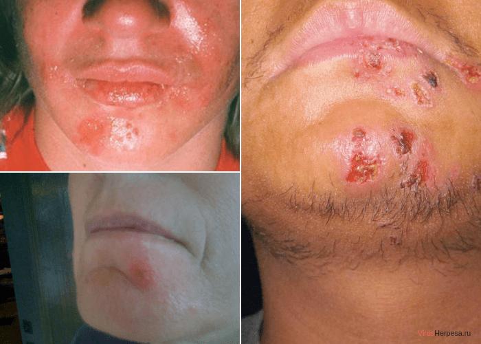 Вирус герпеса на подбородке лечение