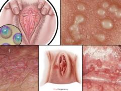 Герпес на половых губах: причины, симптомы заболевания, как лечить вирус