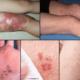 Герпес на ногах (фото): какие причины появления, симптомы, и особенности лечения вируса