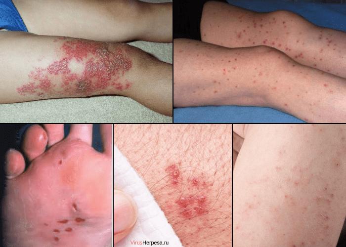 Герпес на ноге фото симптомы и лечение