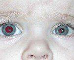 Kak-proyavlyaetsya-citomegalovirus-u-detej-s-vrozhdennoj-infekciej?
